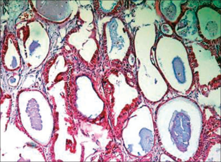 The neoplastic cells have an eosinophilic granular cytoplasm.