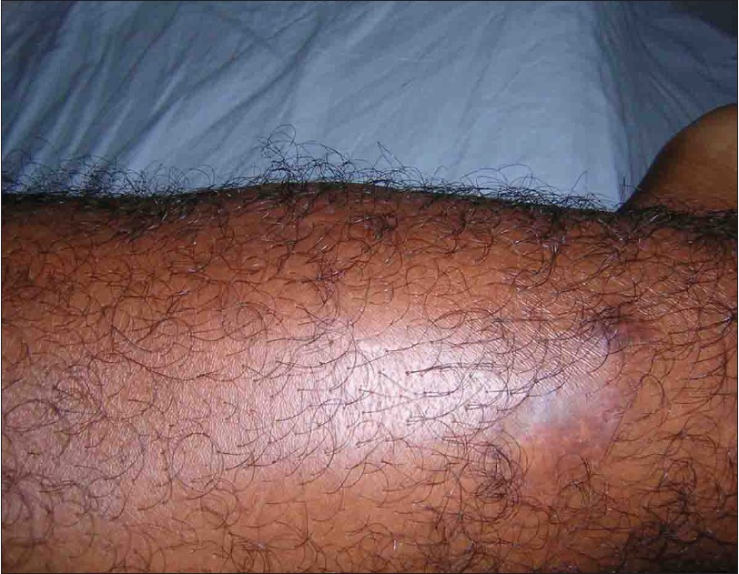 Fig. 1: Bluish nodules left leg