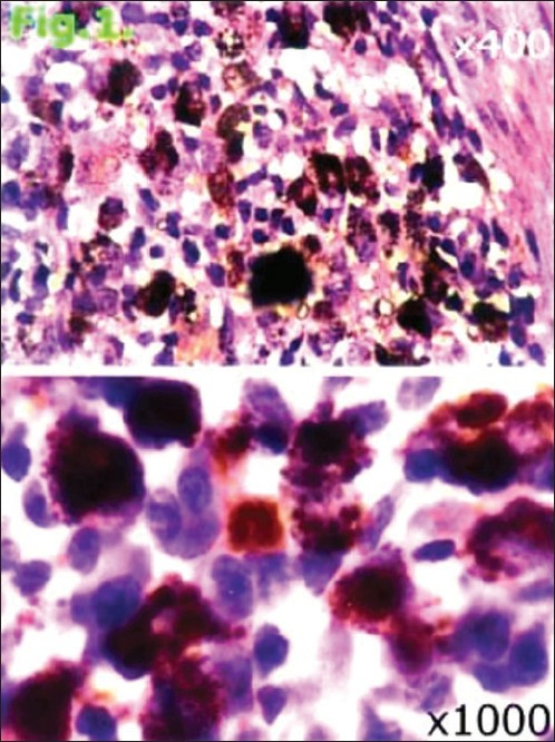 Fig. 1: CD20 positive cells in granuloma (immunostaining)