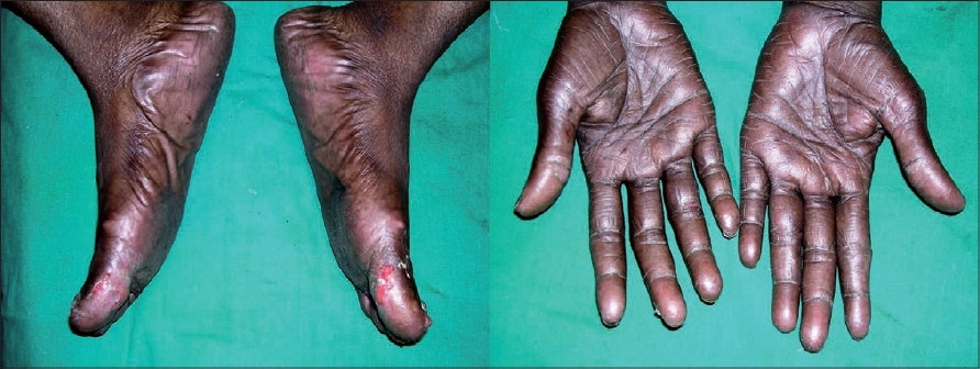 Figure 1: Dry, hyperpigmented palms and soles with ulceration over great toes with capecitabine therapy
