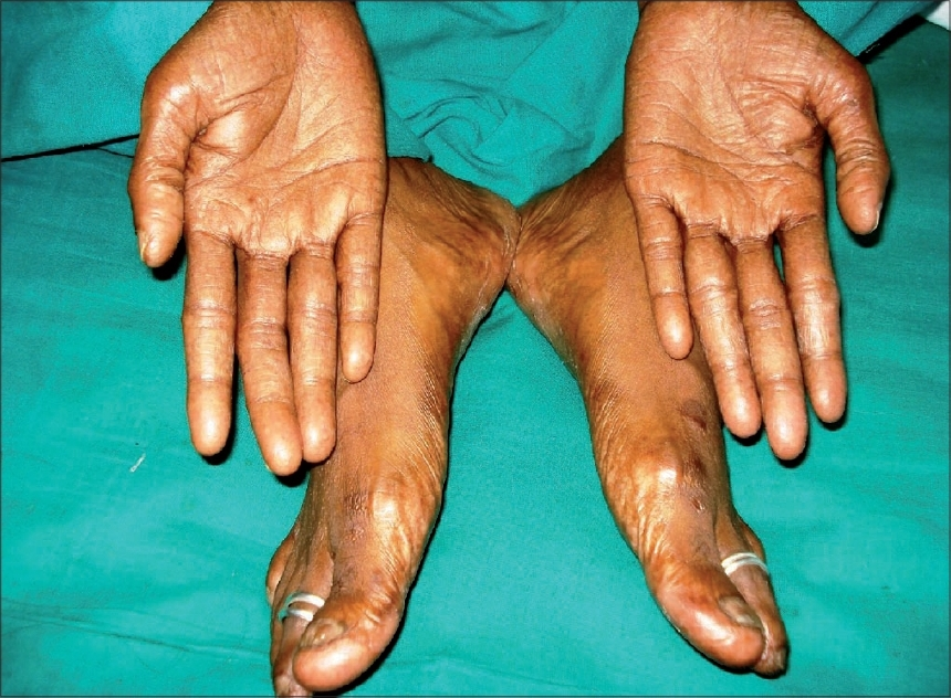 Figure 2: Resolution of dryness, pigmentation and ulceration after three months of stopping capecitabine