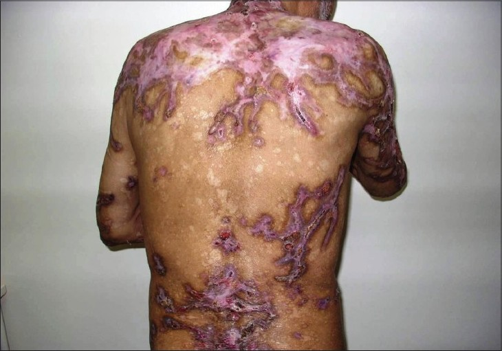 Figure 2: After the treatment of multiple myeloma, eroded lesions completely regressed and only hypertrophic scars are seen