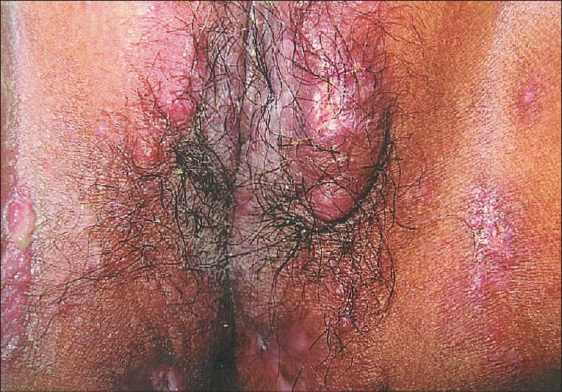 Figure 1: Multiple papules, nodules and ulcers on the external genitalia and surrounding skin