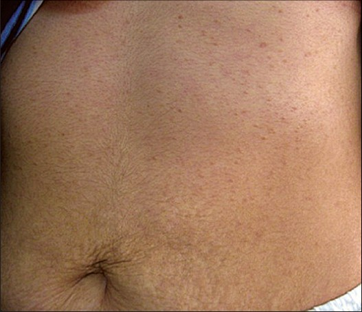 Figure 1: Multiple skin- to tan-colored ß at topped papules on the upper abdomen and anterior chest