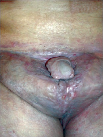 Figure 2: Penis and scrotal region 6 months after surgical treatment