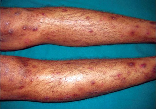 Figure 1: Clinical picture showing the hyperpigmented papulonodules on the lower limbs