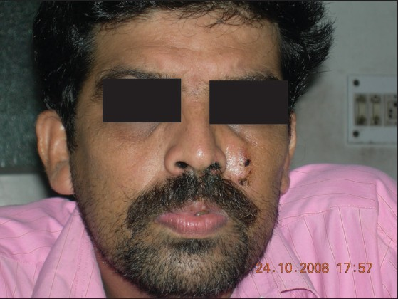 Figure 1: Swelling on the left side of the nose extending up to the forehead and including multiple sinuses