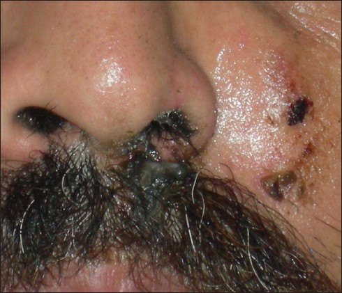 Figure 2: Close-up view of the sinuses and the blackish discharge from the left nostril containing purulent necrotic debris