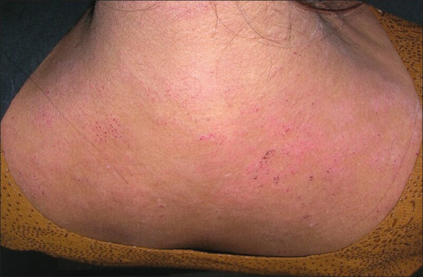 contact dermatitis treatment steroid