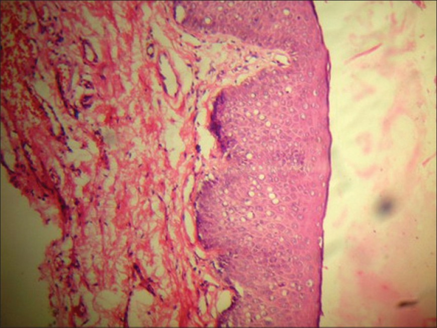 Figure 5: Case two - histopathology showing acanthosis and epidermal dysmaturation, H and E, �