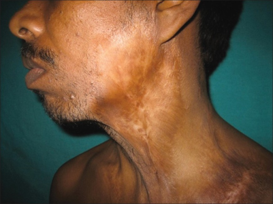 Figure 2: Atrophic scarring over left mandibular region and neck