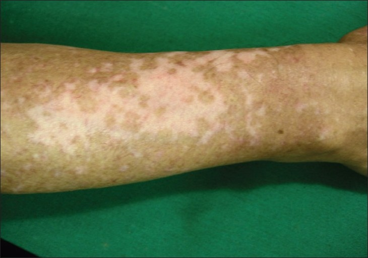 Figure 3 :Diffuse repigmentation pattern. Several patches of repigmentation on the dorsum of forearm in this patient indicate recovery with a diffuse pattern