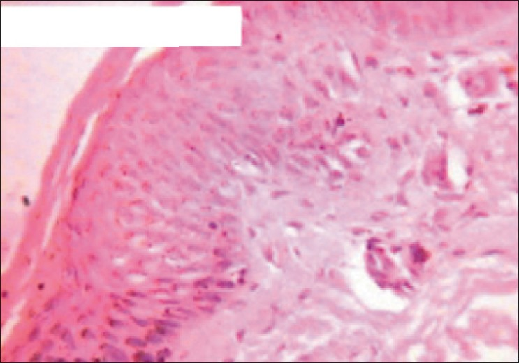 Figure 2: Histopathology showing variable epidermal pigmentation with some pigmentary incontinence (H and E, x100)