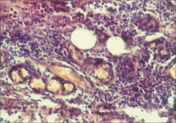 Figure 3: H and E, x240 showing granulomatous infiltrate with predominant histiocytes