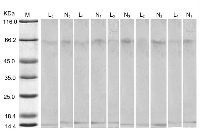 Figure 4 :Specific gel staining of tyrosinase in five nonlesional and lesional skins of vitiligo patients. N - the total protein in nonlesional skins, L - The total protein in lesional skins, M - Protein molecular marker
