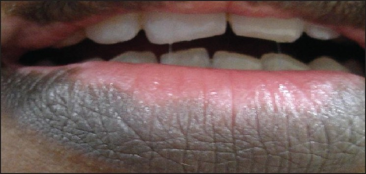 Cosmetic camouflage in vitiligo Sarveswari K N - Indian J Dermatol
