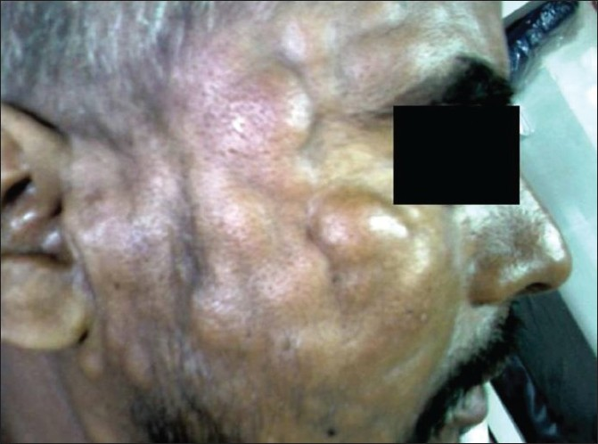 Figure 1: Multiple subcutaneous skin nodules seen over the face