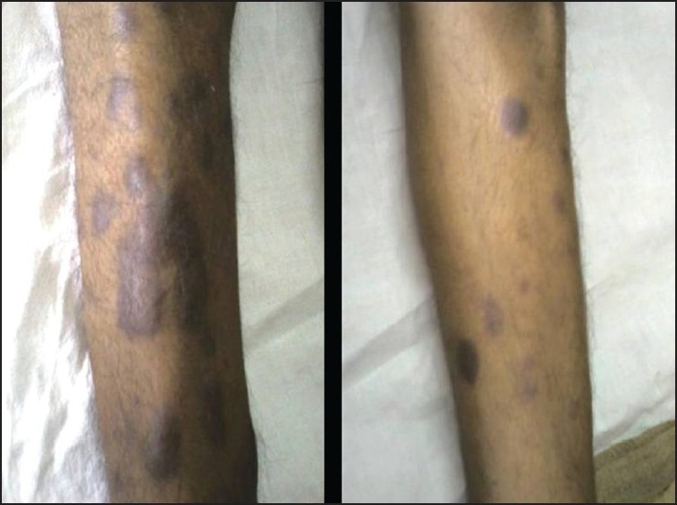 Figure 2: Violaceous papules and plaques seen over the lower limbs
