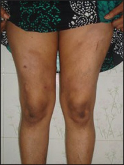 Figure 1: Nodule showing central atrophy and peripheral erythema and scaling