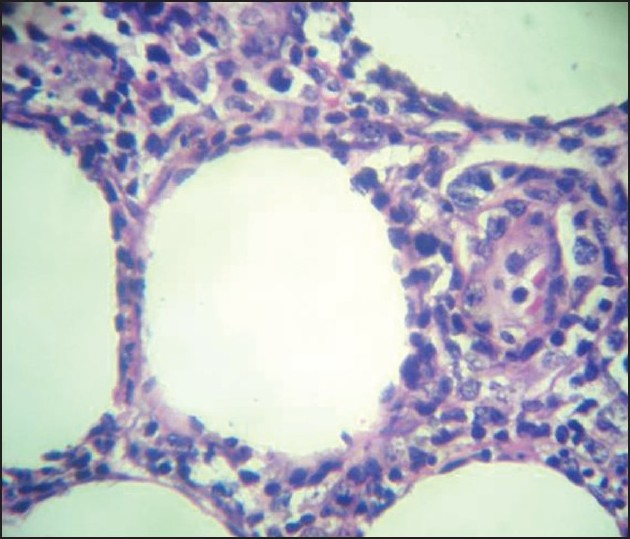 Figure 5: Rimming of fat cells by atypical lymphoid cells (H and E stain, ×100)