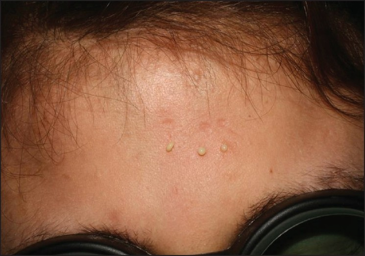 Figure 2 :Oily and creamy material drained from Er: Yag laser created punctum