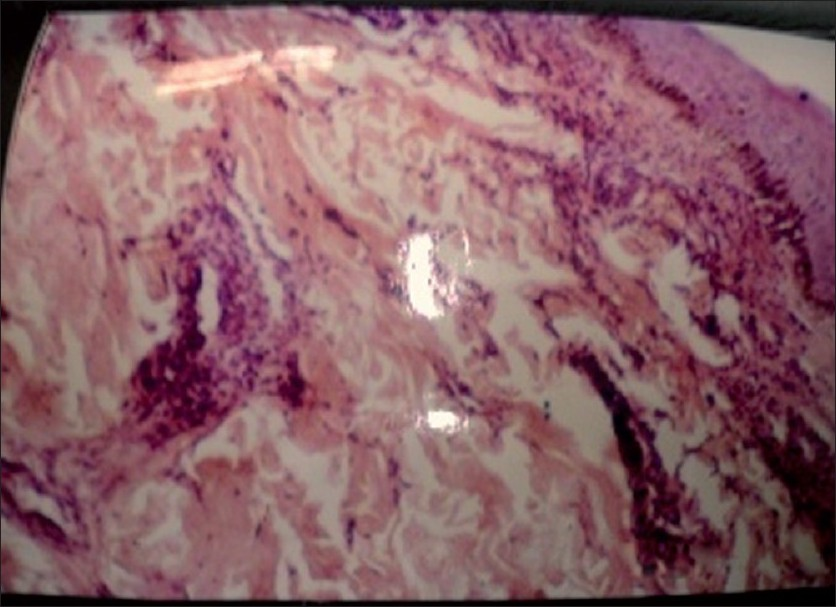 Figure 2 :Histopathology of skin H&E stain 40× showing features of Vasculitis