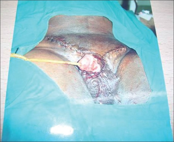 Figure 5 :Formal excision of the lymphedematous part of the scrotum and penis along with left orchidectomy and partial amputation of the penis with skin grafting of the penile shaft