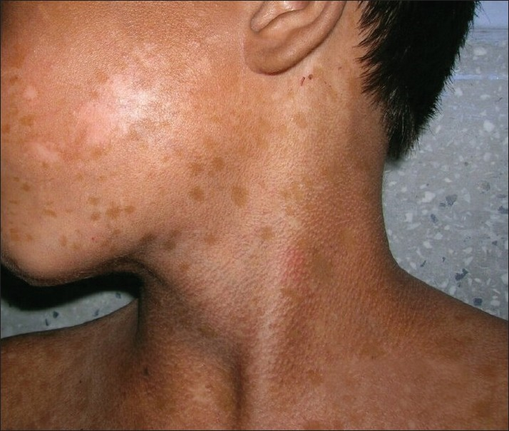 Figure 5 :Poikilodermatous skin changes on neck and a few hypo- and hyperpigmented macules on face