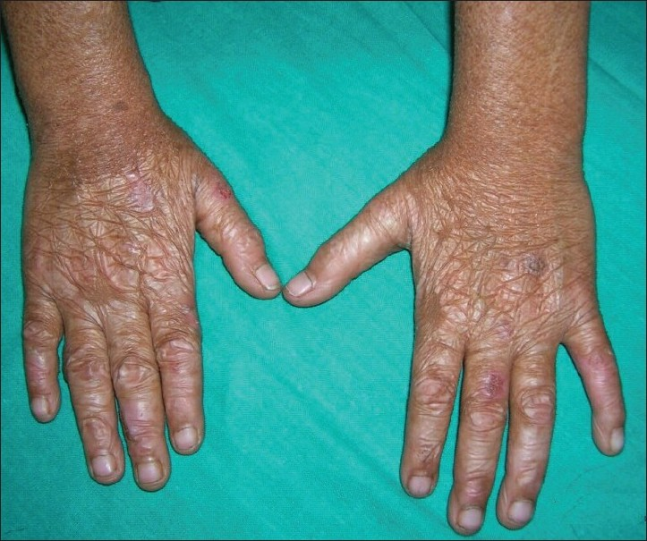 Figure 6 :Atrophic scarring with shiny cigarette paper-like wrinkling and small ulcerations on dorsum of the hands