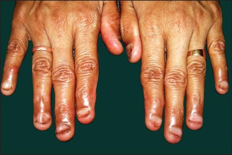 Familial koilonychia Prathap P, Asokan N - Indian J Dermatol