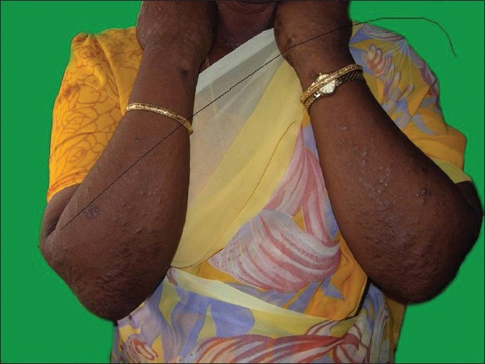 Figure 1: Multiple skin-colored/erythematous papules and plaques