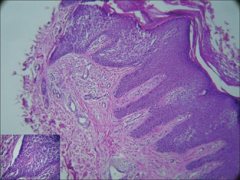 Mild epidermal papillomatosis. Papillomatosis epidermal