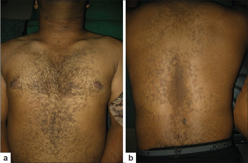 Figure 1: a) Numerous hyperpigmented, rough, slightly elevated papules coalescing to form plaque-like lesions over the chest and abdomen, b) Similar lesions over the back.