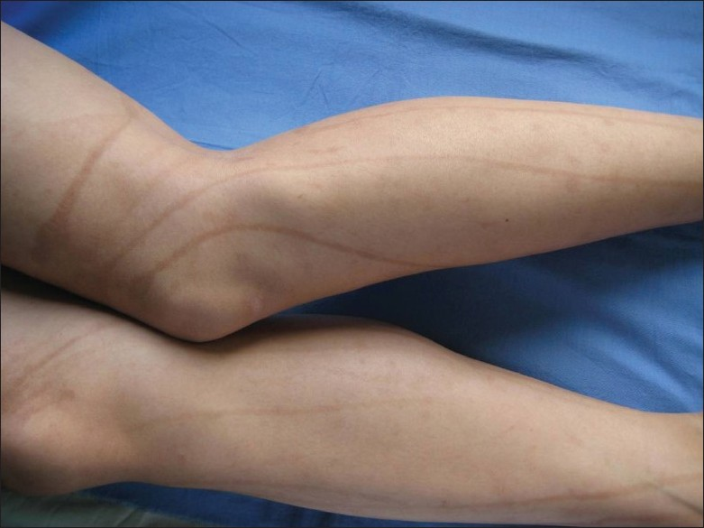 Figure 1: Sharply demarcated hyperpigmented lines and curves on the extensor aspects of thighs and legs
