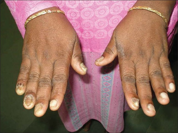 Fibroma Finger Images - Reverse Search