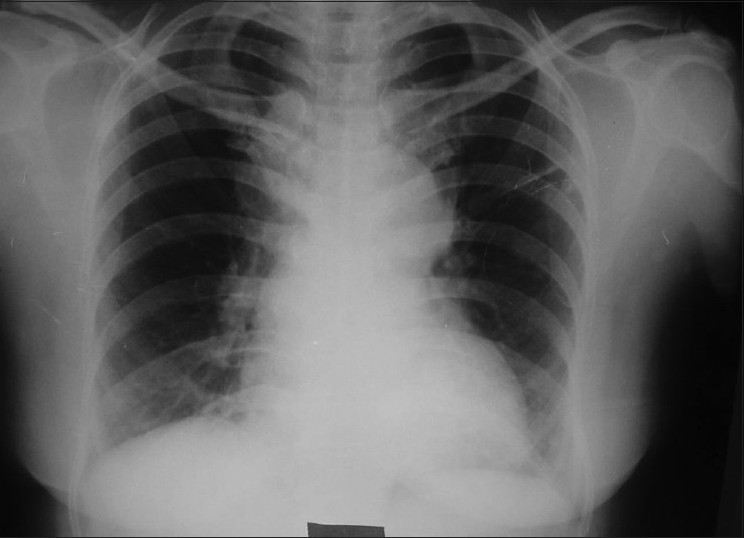 Figure 4: Chest X-ray