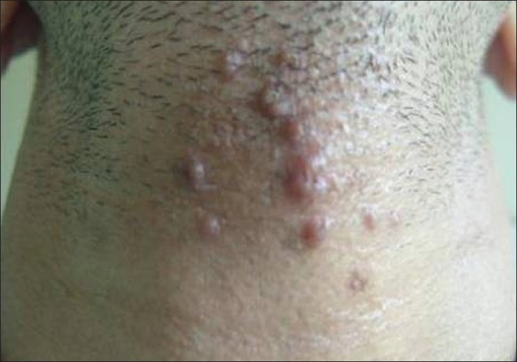 Figure 2: Erythematous linear arrangement of papules showing central perforation and keratin plug