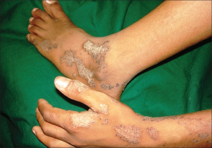 Figure 2: Linearly arranged papules and plaques with an atrophic center and hyperkeratotic ridge
