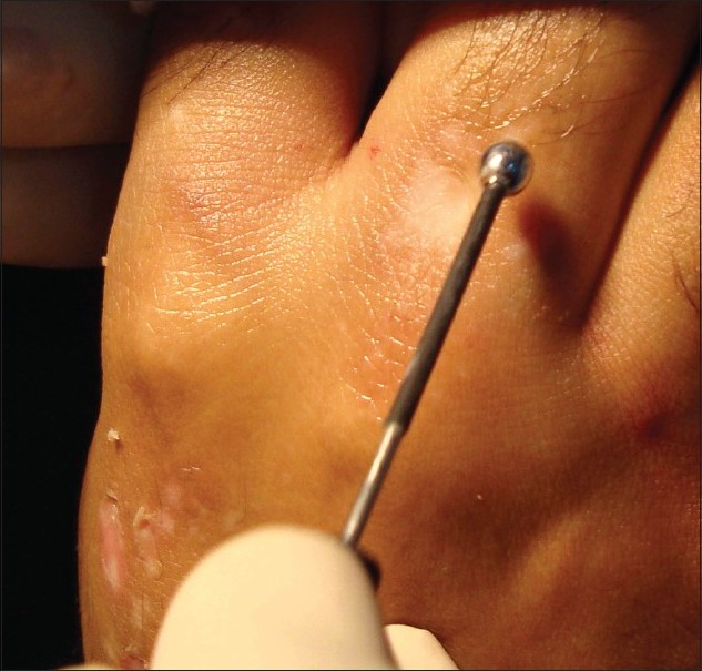 Figure 1: Using the ball - shaped radiofrequency probe for ablating the epidermis