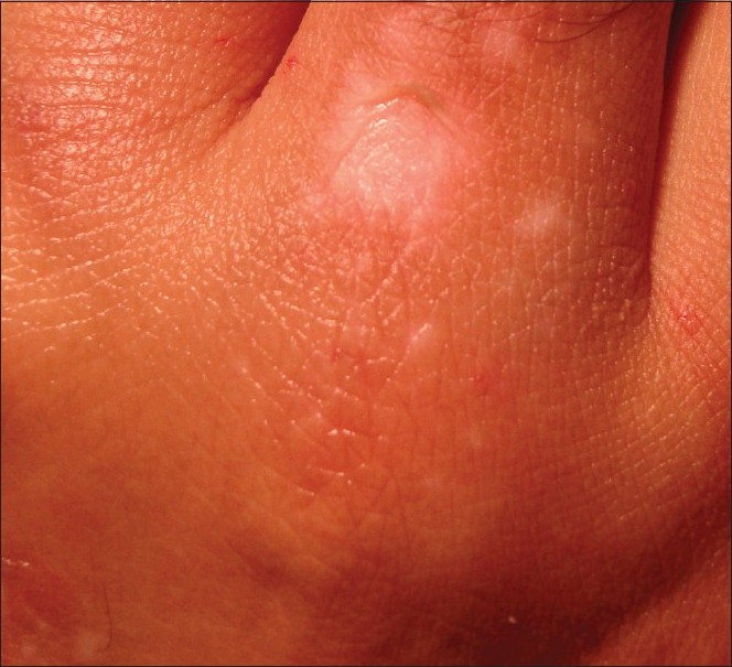 Figure 2: Superficial blistering with separation of epidermis following radiofrequency application