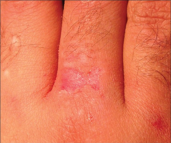 Figure 3: Epidermis wiped with gauze followed by mild manual dermabrasion
