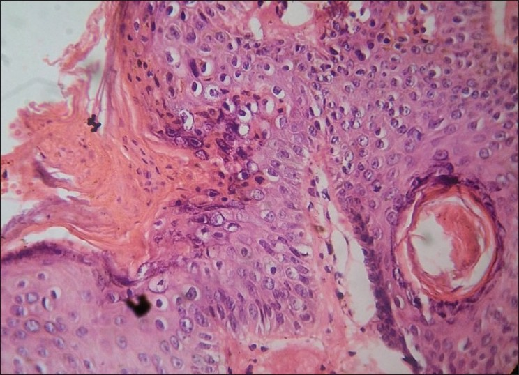 Figure 2: Tightly packed parakeratotic cells with pyknotic nuclei extending into hair follicle and absence of granular layer (H and E stain, ×400)