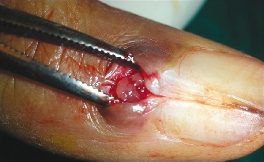 Glomus Tumor of the Finger Tip and MRI Appearance