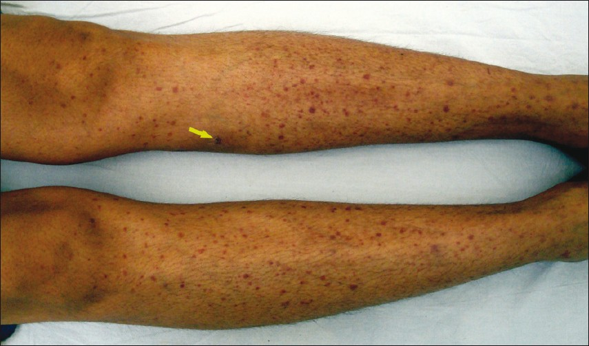Figure 1: Multiple purpuric lesions present all over the legs, barring the area over left upper leg which was covered by pressure bandage. Arrow points to the site of biopsy