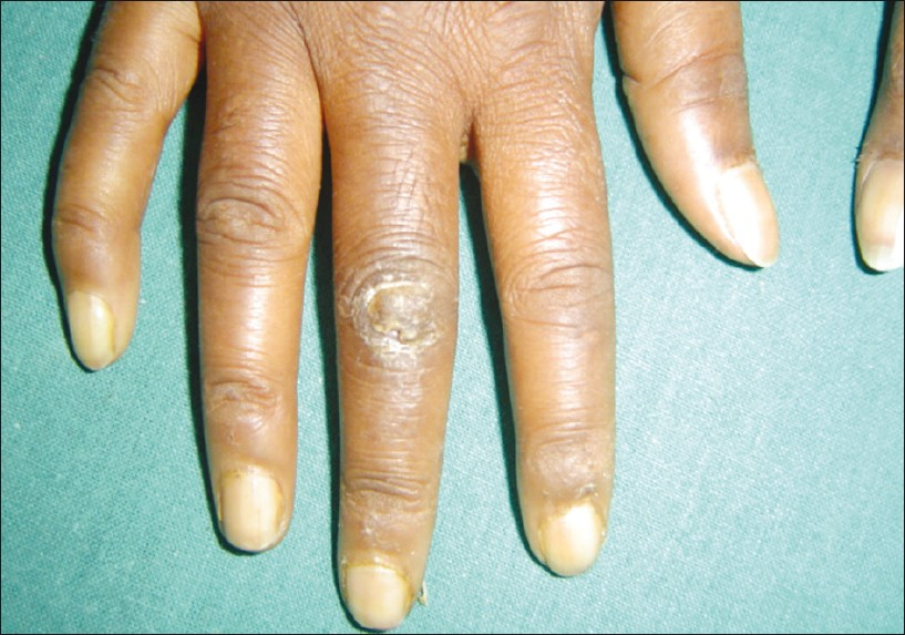 Figure 3: Pseudo-clubbing and bilateral puffiness of fingers and ulceration at the knuckle