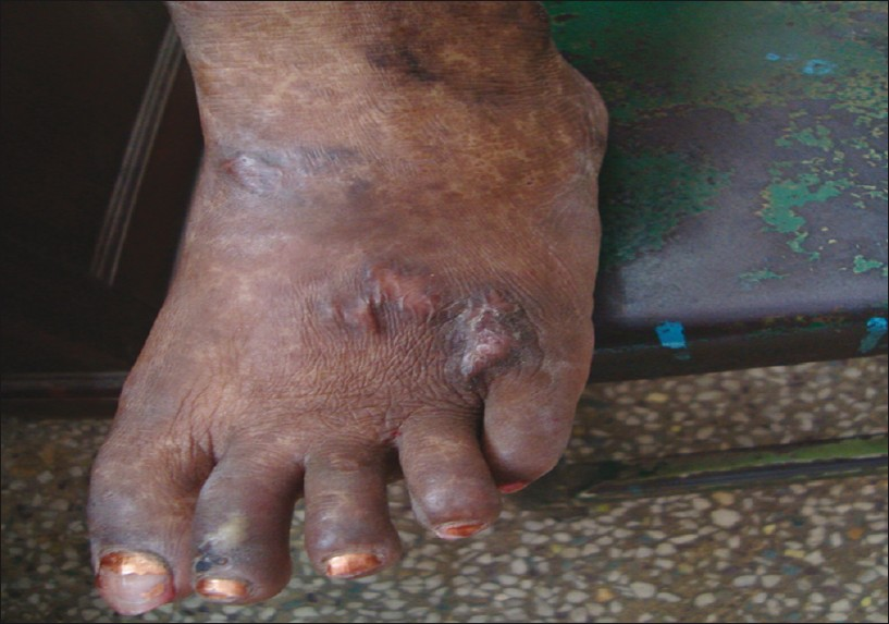 Figure 6: Post-treatment photograph after 1 month of azathioprine therapy showing healed ulceration on the dorsa of foot leaving behind a cribriform scar