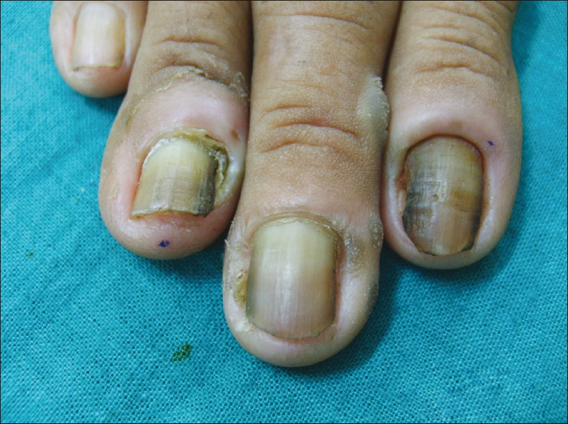 Study of nail changes and nail disorders in the elderly Rao S ...