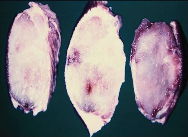 Figure 3: Variable-sized grey-white nodular masses with gelatinous cut surface
