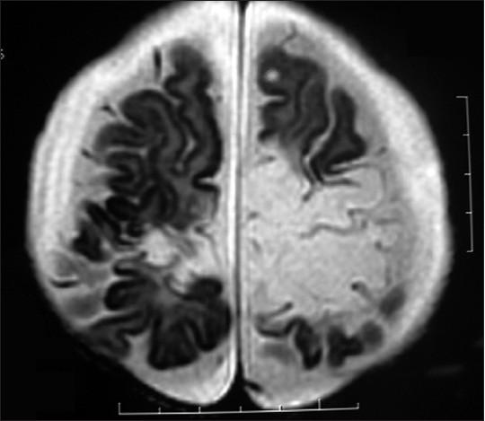 Poor Neurological Sequelae Of Herpes Simplex Virus