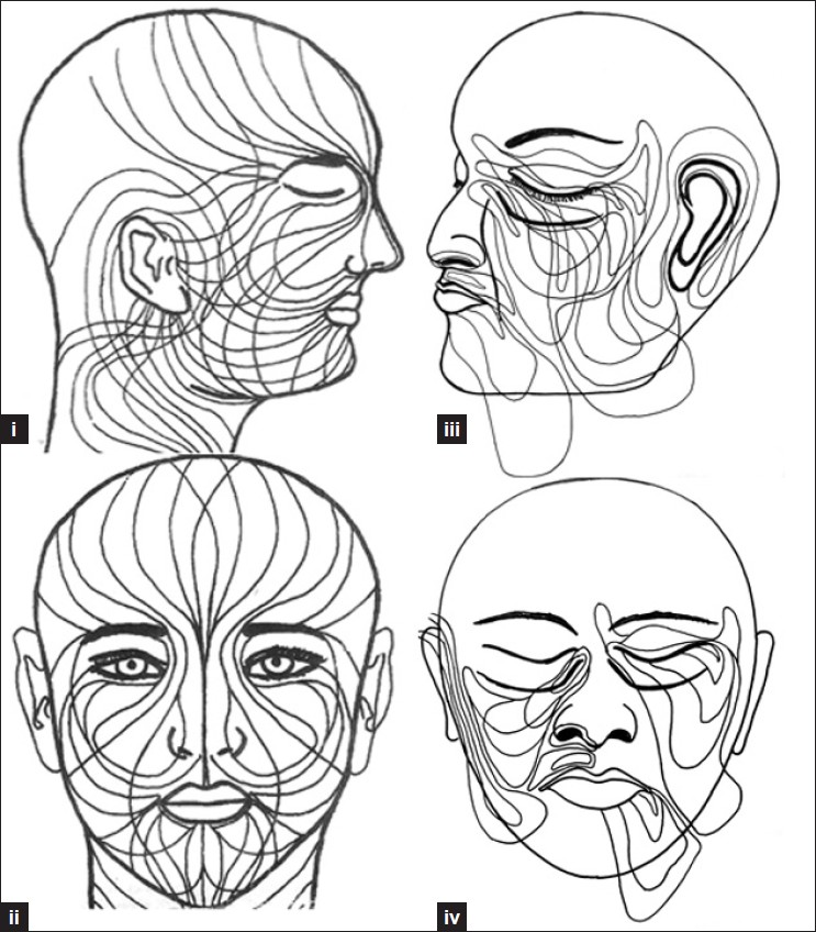 Pigmentary Nevi On Face Have Unique Patterns And Implications The